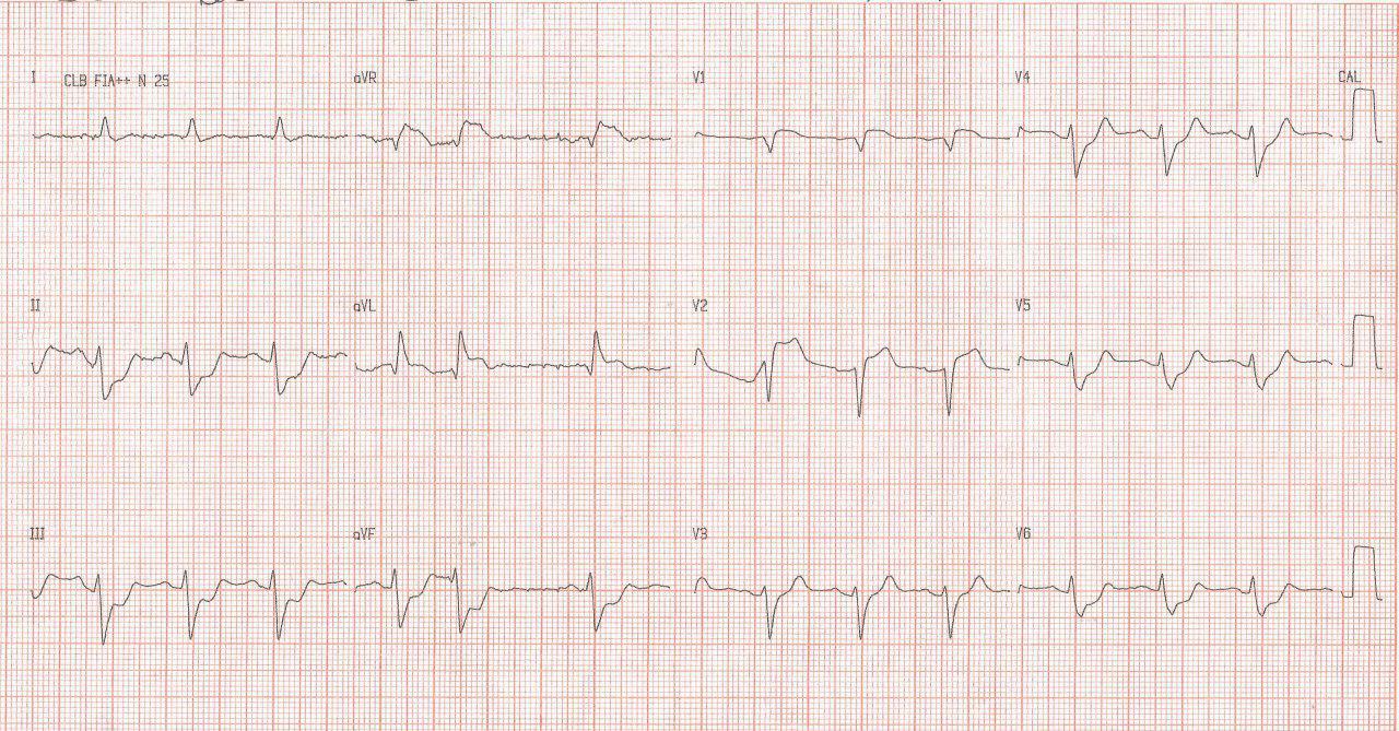 Paciente masculino de 55 años con angor de comienzo súbito y rápido deterioro hemodinámico por oclusión total de TCI