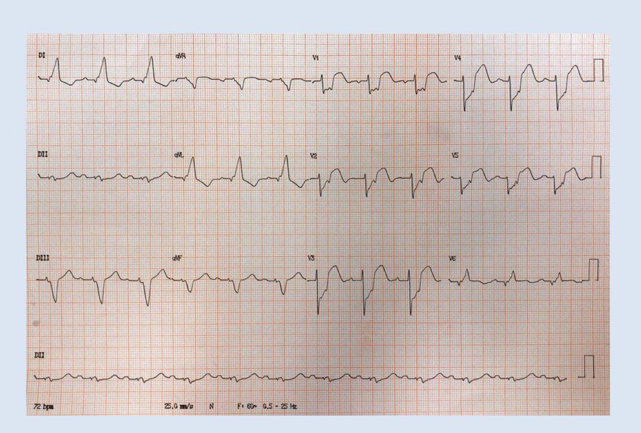 Hombre de 58 años con factores de riesgo y antecedentes de infarto previo e implante de CDI que presenta EAP en contexto de SCA con BCRI por oclusión total de DA
