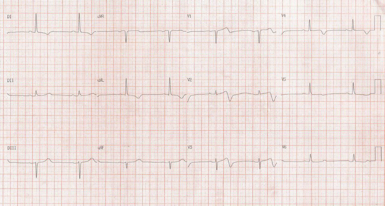 Paciente masculino de 77 años con múltiples factores de riesgo y antecedente de implante de stent hace un mes que presenta angor inestable por suboclusión de la DA