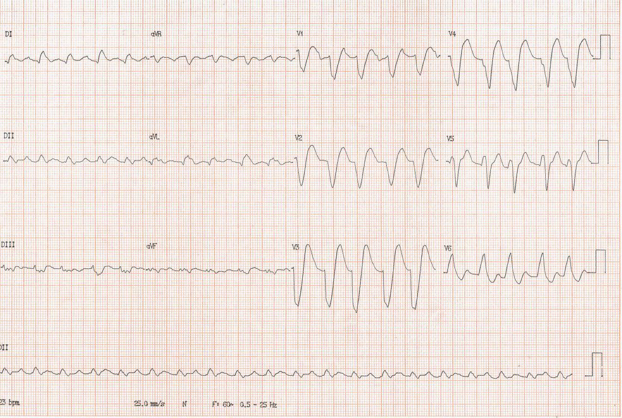 Paciente portador de miocardiopatía dilatada con Fey = 18% que se agrava después de episodio gripal por desarrollo de FA aguda