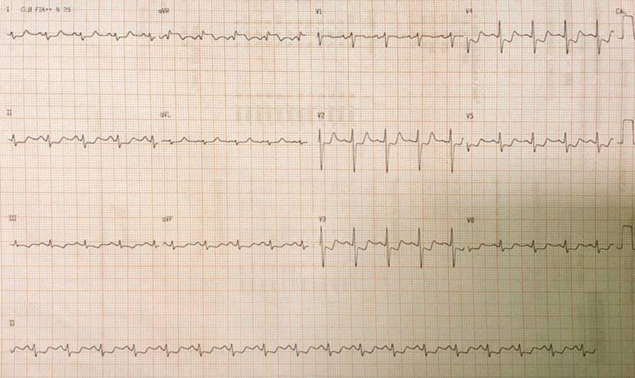 Mujer de 48 años jaquecosa crónica que utiliza ergotamina, que presentó angor prolongado por espasmo de TCI