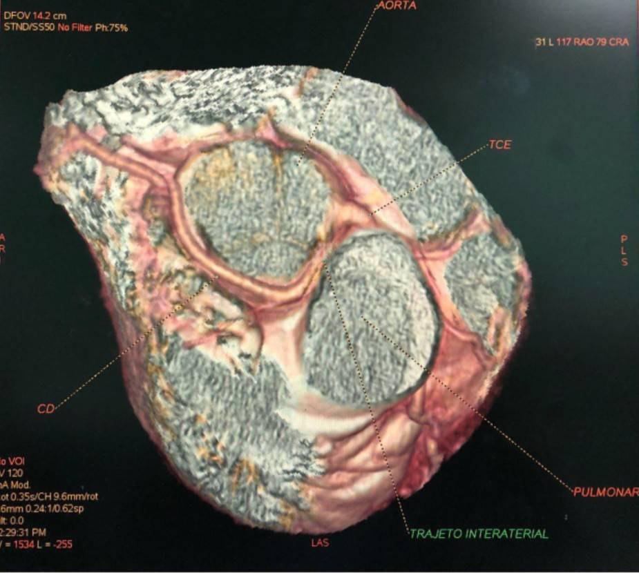 AngioTAC coronaria de joven de 18 años que presenta origen de la arteria coronaria derecha desde el seno coronario izquierdo con curso inter-arterial