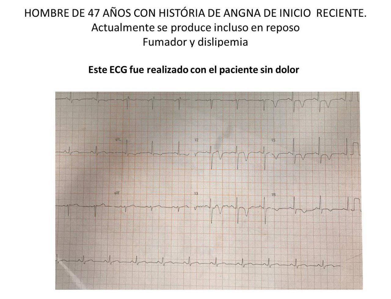 Hombre de 47 años con angina de reciente comienzo y episodios de reposo que presenta suboclusión de DA y pseudonormalización del ST T intradolor