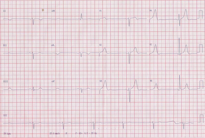Paciente masculino de 80 años con angor y palpitaciones por alternancia de taquicardia y bradicardia con compromiso de CD y arteria del nódulo sinoauricular (ANSA)