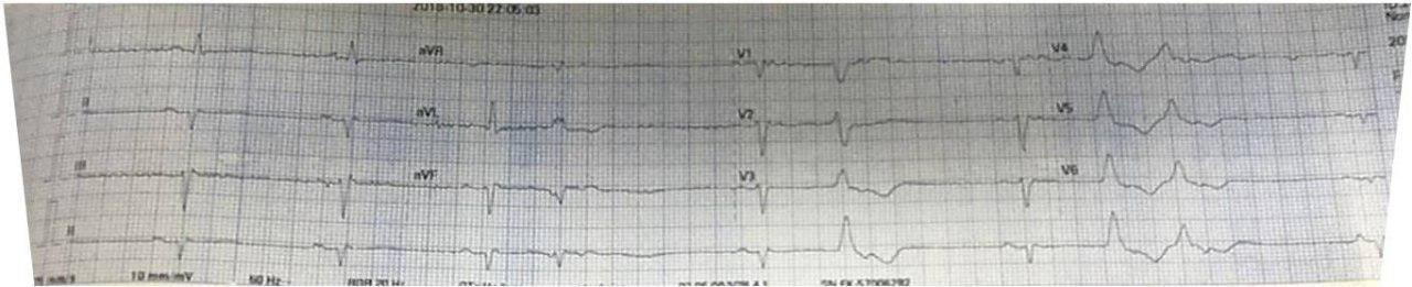 Paciente masculino de 52 años con palpitaciones y presíncope que presenta displasia arritmogénica de VD