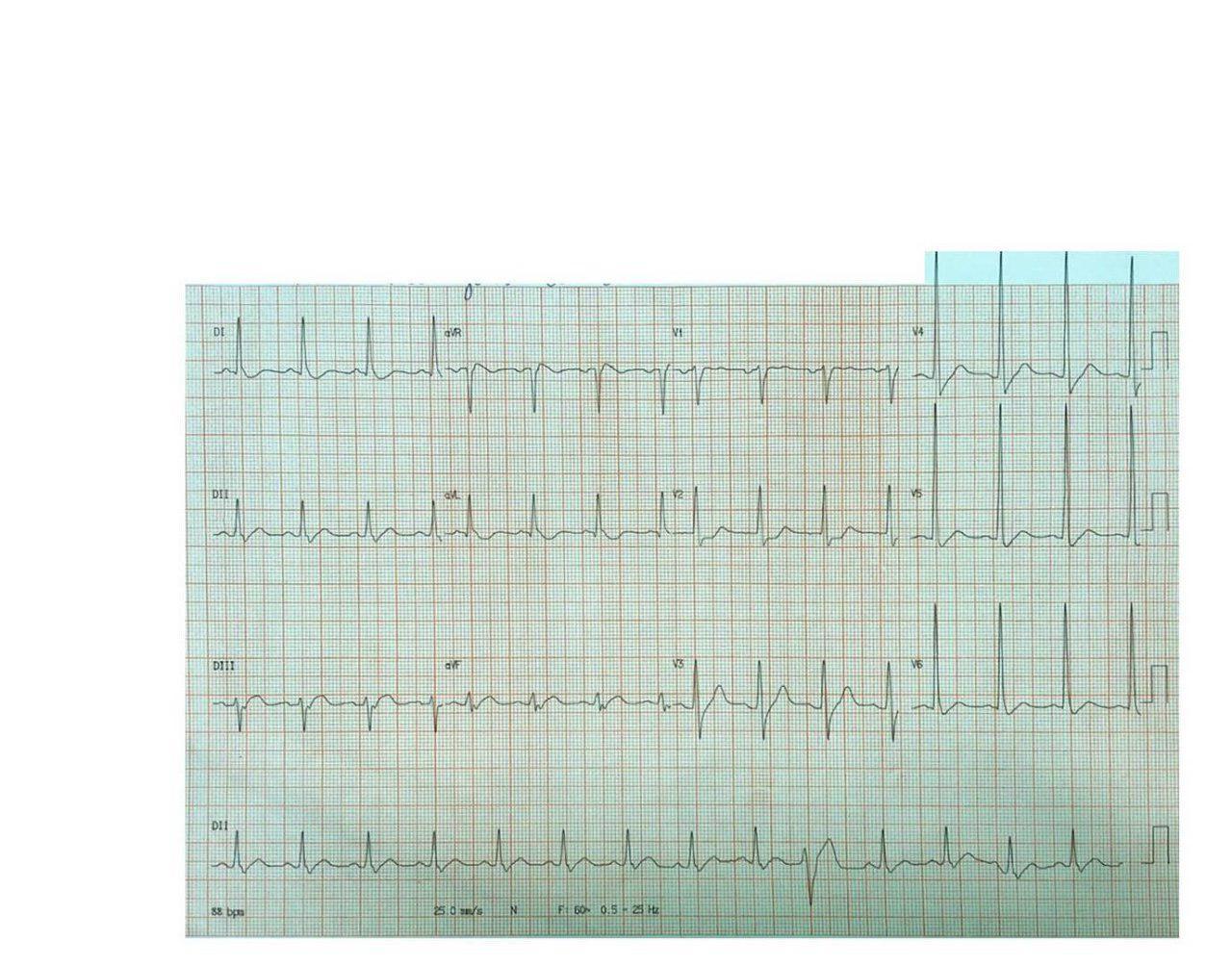 Paciente hipertenso con dolor intenso en región dorsal que presenta IAM lateral (ex dorsal) por oclusión total de Cx, con aortograma normal que descarta la disección sospechada
