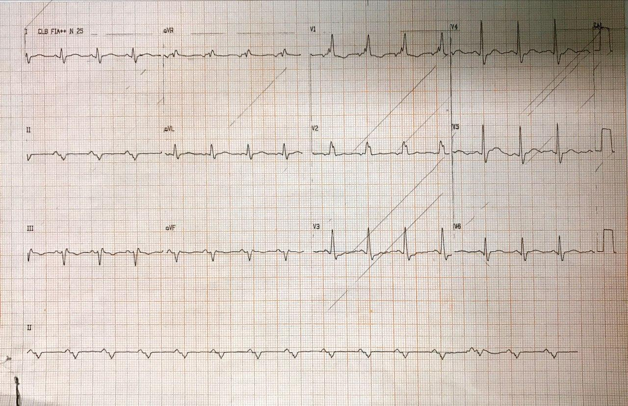 Paciente masculino de 61 años con angor prolongado por compromiso de la Cx interpretado erróneamente como SCASEST