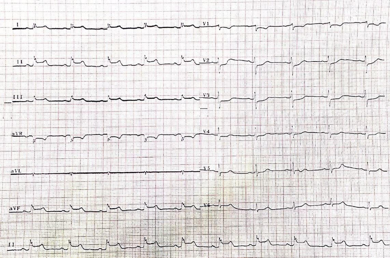 Mujer de 55 años medicada con AINEs que presenta angor y episodio sincopal por vasoespasmo de arteria Cx