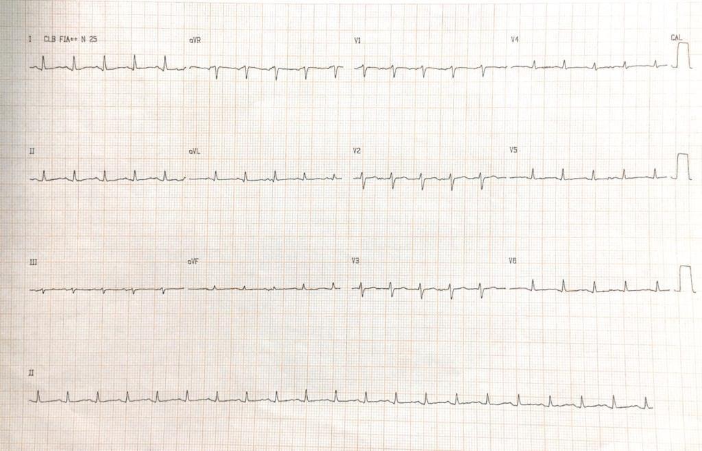 Mujer de 63 años con disnea e hipotensión debidas a taponamiento cardíaco en contexto de metástasis pericárdicas y pleurales de CA de mama