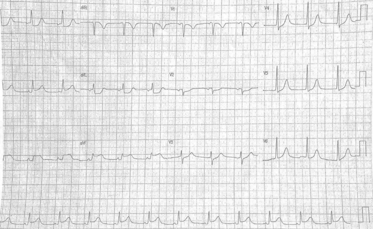 Mujer con angor prolongado e hipotensión por disección aórtica con compromiso de CD, VD con ruptura y taponamiento cardíaco