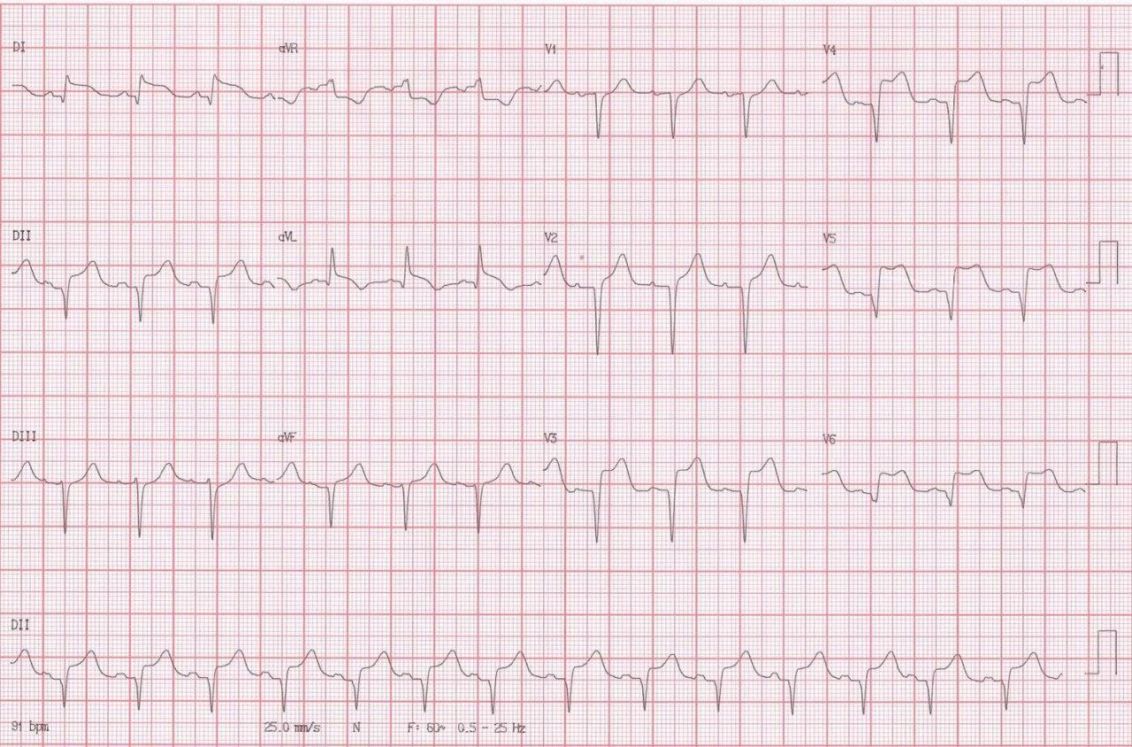 Mujer de 72 años con crisis hipertensiva, cefalea intensa y disminución del sensorio en la que se detecta síndrome de takotsubo y hemorragia subaracnoidea con inundación ventricular