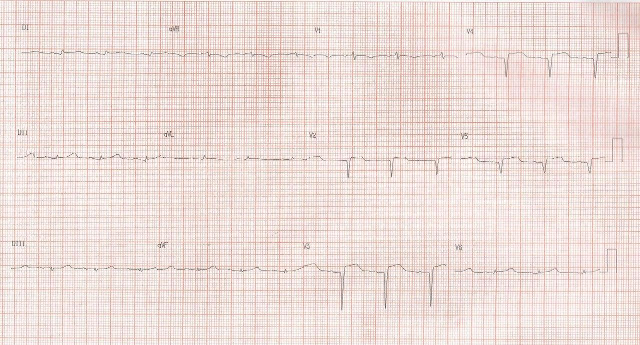 Mujer de 56 años con dolor toráccico prolongado luego se stress cuyo diagnóstico aún controversial podría ser SCACEST o síndrome de takotsubo