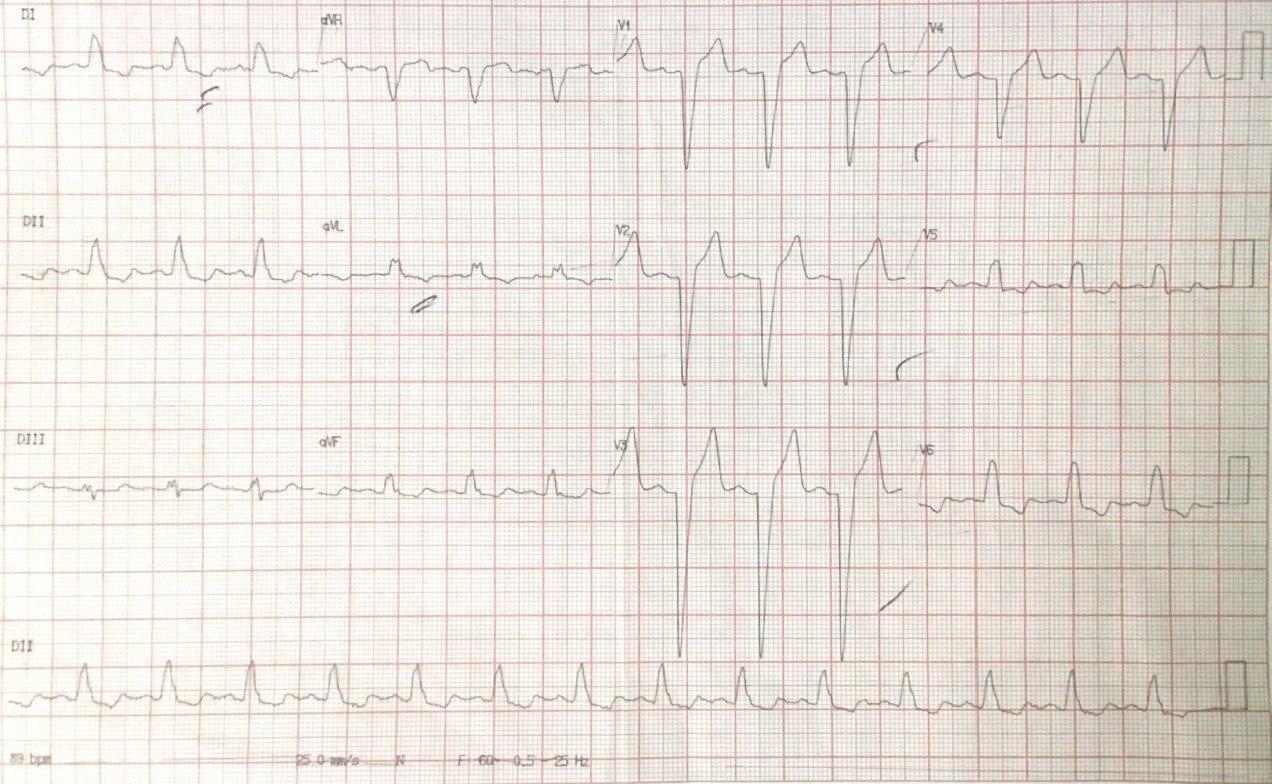 Hombre de 68 años hipertenso y diabético con angor prolongado; en contexto de BCRI, la polaridad de onda T permite descartar Memoria Cardíaca