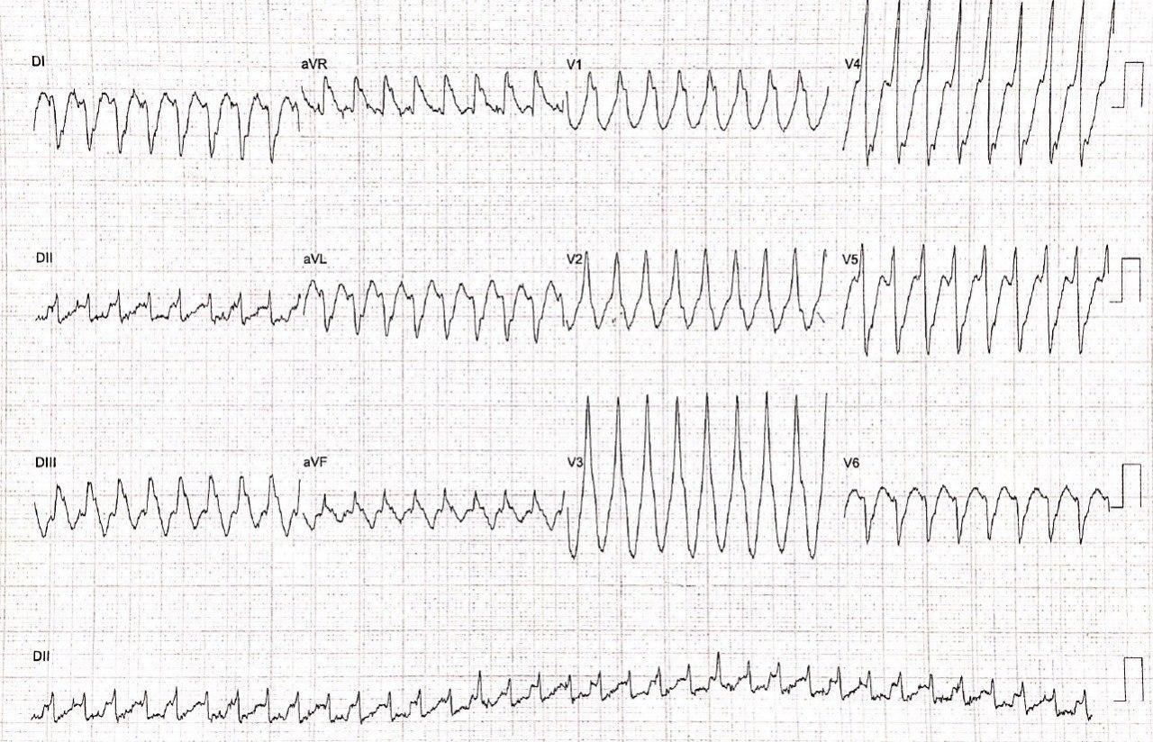 Hombre de 77 años con historia de enfermedad coronaria con implante de stent a DA hace 16 años que presenta angor con presencia de TV fascicular y oclusión de 80% de CD
