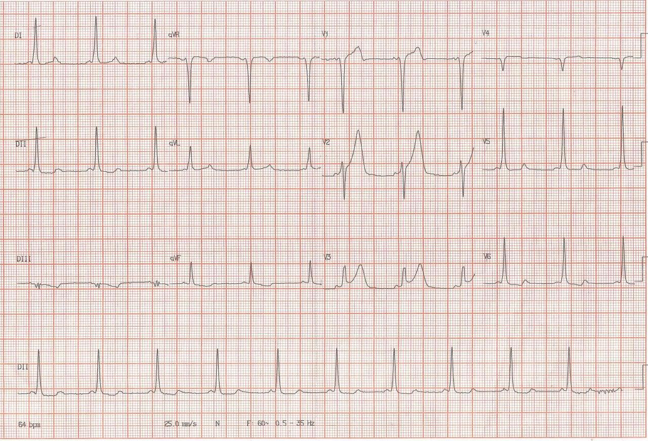 Hombre de 40 años hipertenso con dolor precordial y presencia de WPW que simula isquemia que no fue demostrada