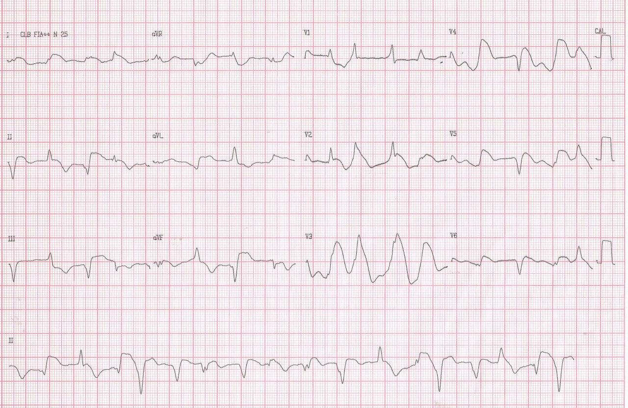Mujer de 40 años que presenta angor prolongado post stress por sindrome de takotsubo con presencia de ondas lambda que indican mal pronóstico
