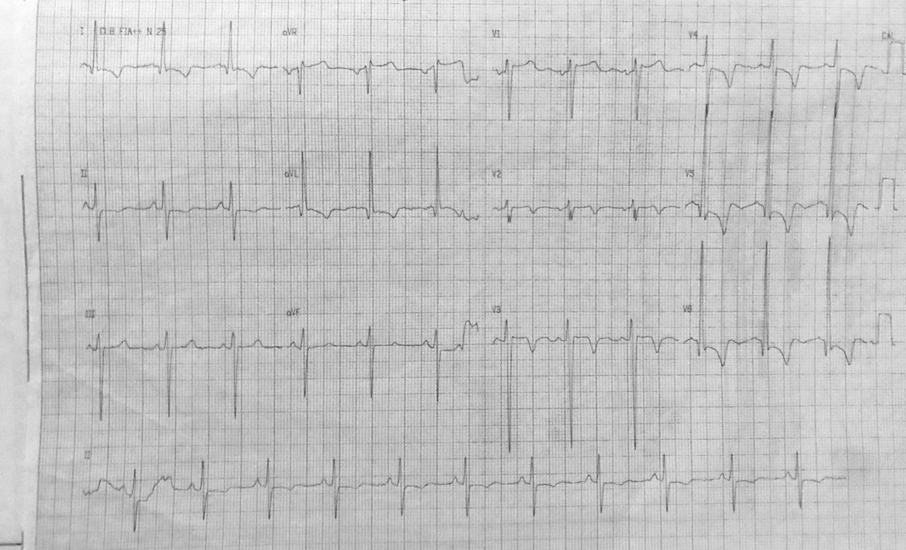 Paciente de 55 años, masculino con disnea + dolor  precordial  y un episodio de síncope al esfuerzo por estenosis aórtica calcificada severa