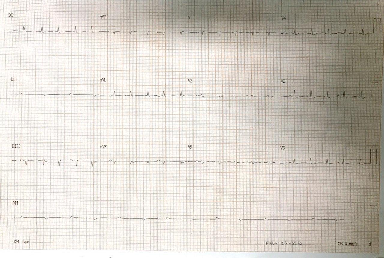 Hombre de 47 años en el postoperatorio inmediato de transplante cardíaco complicado con hemopericardio por lesión coronaria que irriga VD