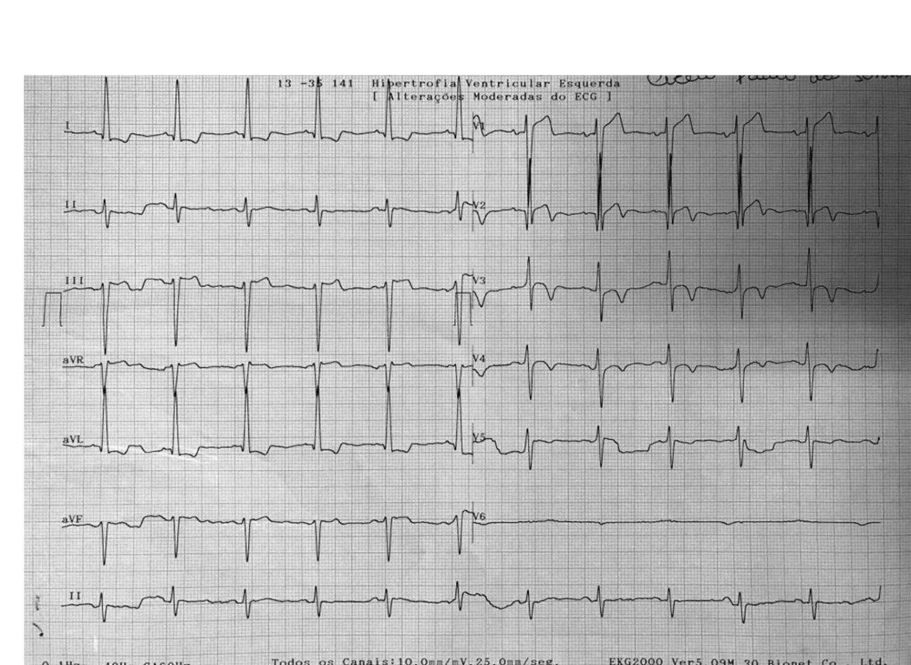 Hombre de 57 años hipertenso y diabético que presenta angor prolongado por SCA por suboclusión de DA