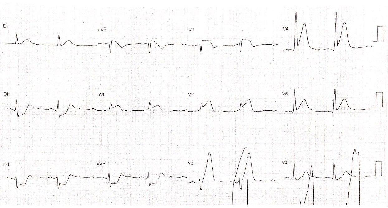 Hombre de 76 años con HTA y dislipemia que presenta cuadro de IAM hiperagudo con desarrollo de ulterior FV por presencia de patrón triangular del QRS-ST-T