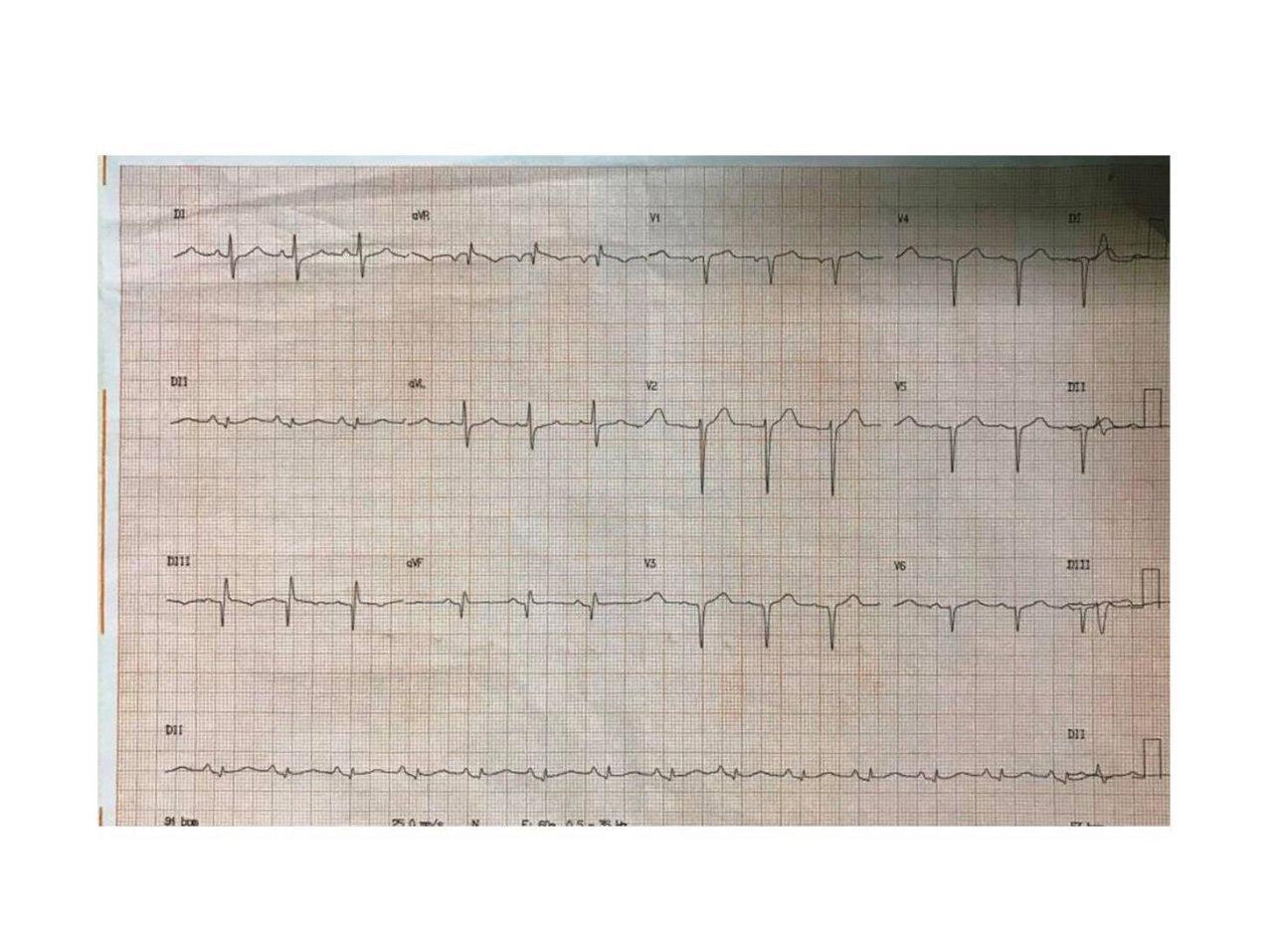 Mujer de 61 años hipertensa y diabética con precordialgia atípica y presencia de ondas Q en cara inferior que se interpretan como no patológicas por su duración normal