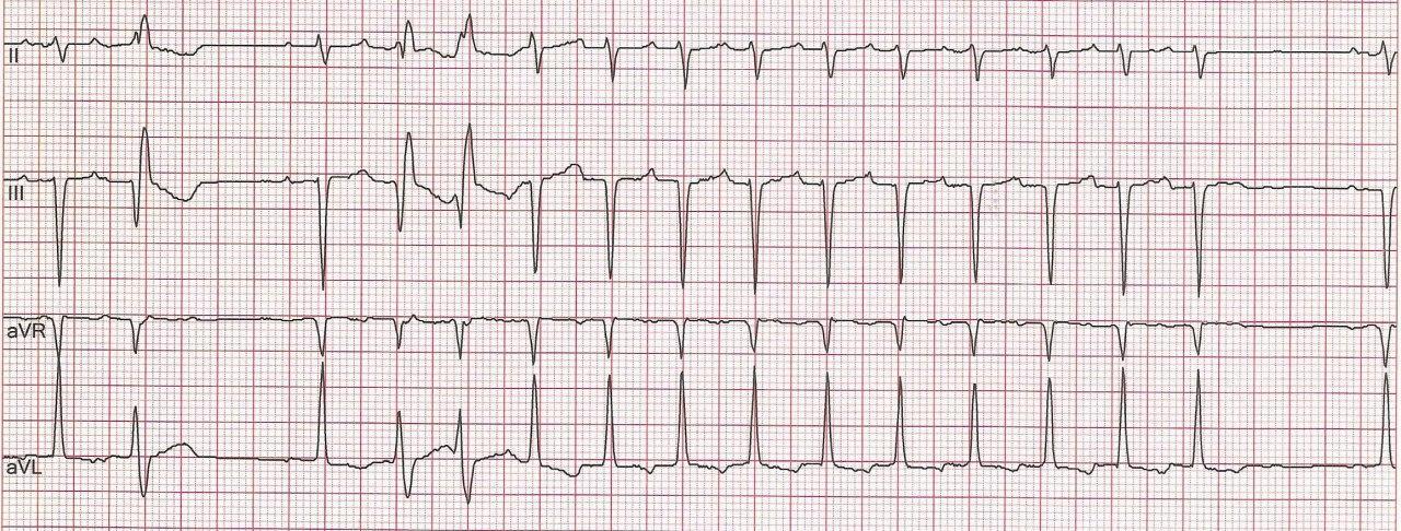 Mujer de 67 años con palpitaciones cuyo Holter muestra episodios de taquicardia que concluyen con un QRS, sin ondas P retroconducidas que permiten confirmar el diagnóstico de Taquicardia Auricular, descartando mecanismo de reentrada