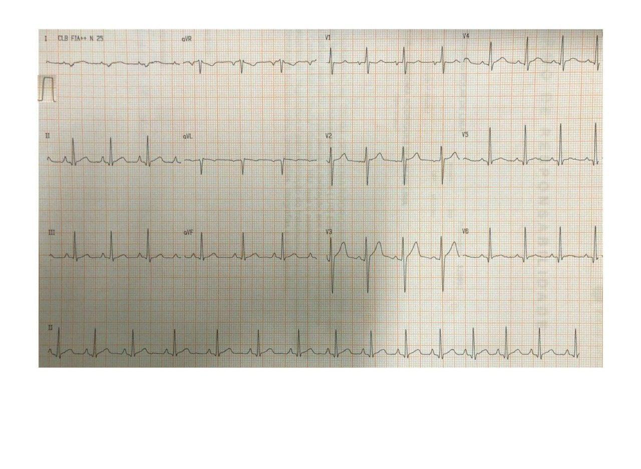 Masculino de 20 años con precordialgia y disnea desde hace 3 semanas atribuibles a miocarditis aguda