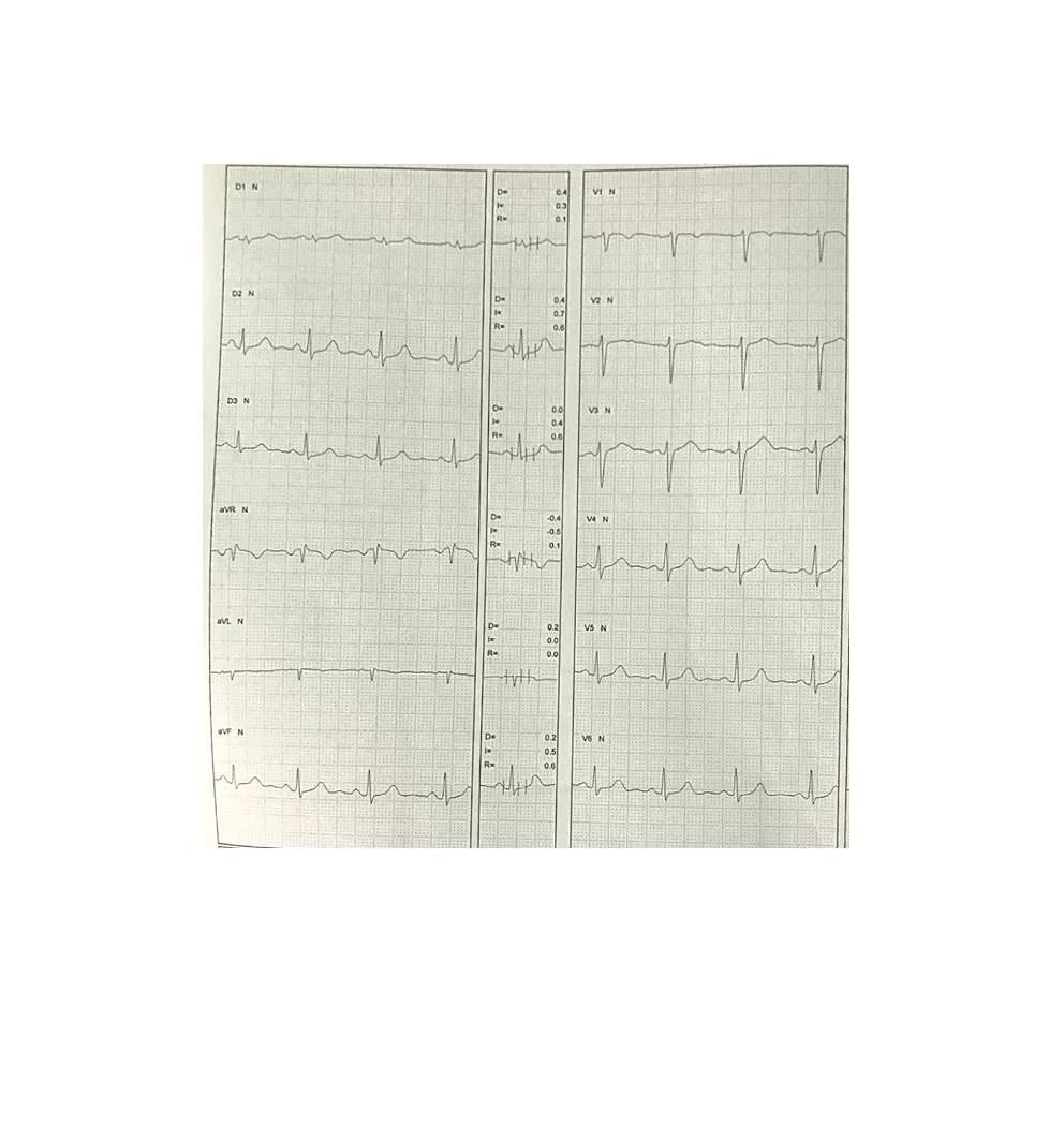 Mujer de 28 años con historia de síncope precedido por palpitaciones vinculadas a estress originadas en taquicardia ventricular catecolaminérgica evidenciada en PEG