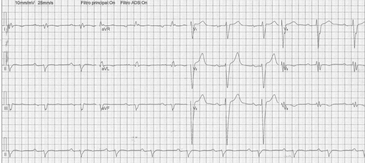 Paciente portador de miocardiopatía dilatada no isquémica que presenta BCRI y eje eléctrico a la derecha por dilatación de cavidades derechas