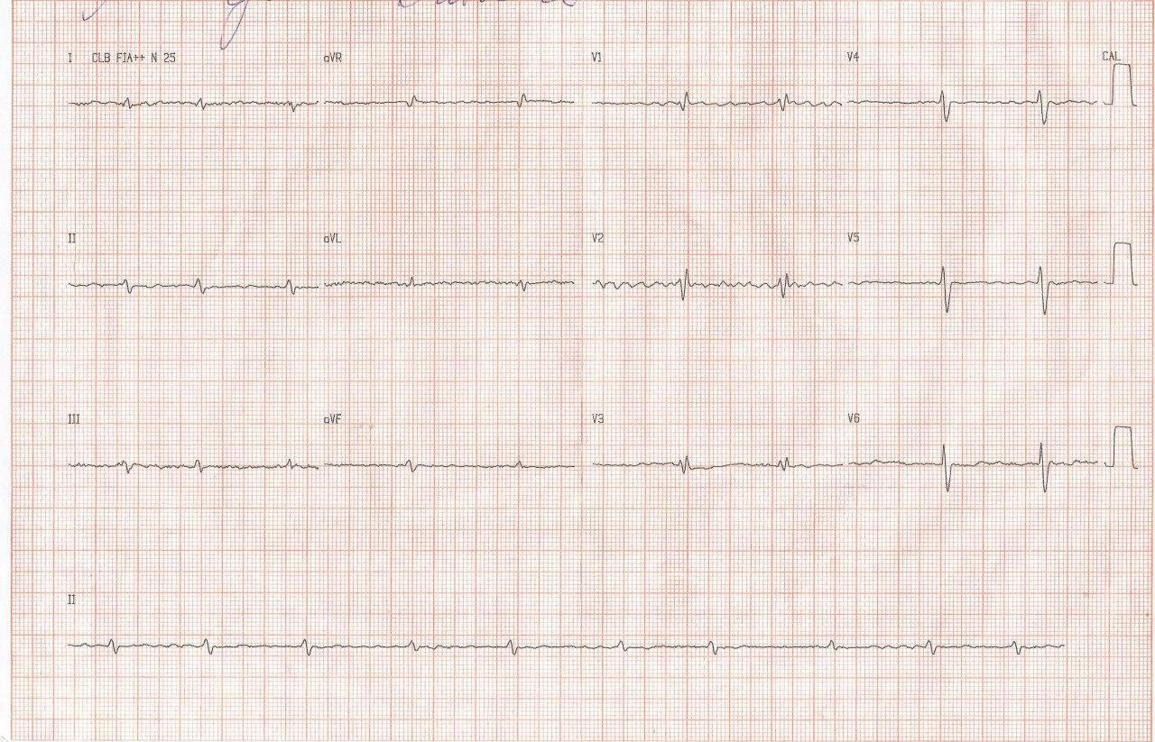 Mujer de 45 años con disnea, edemas y dolor abdominal que presenta aurículas dilatadas y ambos ventrículos normales por presencia de una miocardiopatía restrictiva