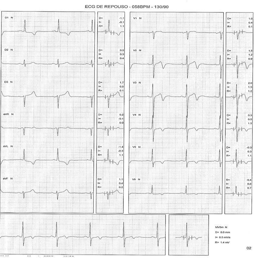 Hombre asintomático de 69 años con dislipemia y antecedentes familiares de enfermedad coronaria portador de miocardiopatía hipertrófica que presenta pseudonormalización de ondas T durante PEG
