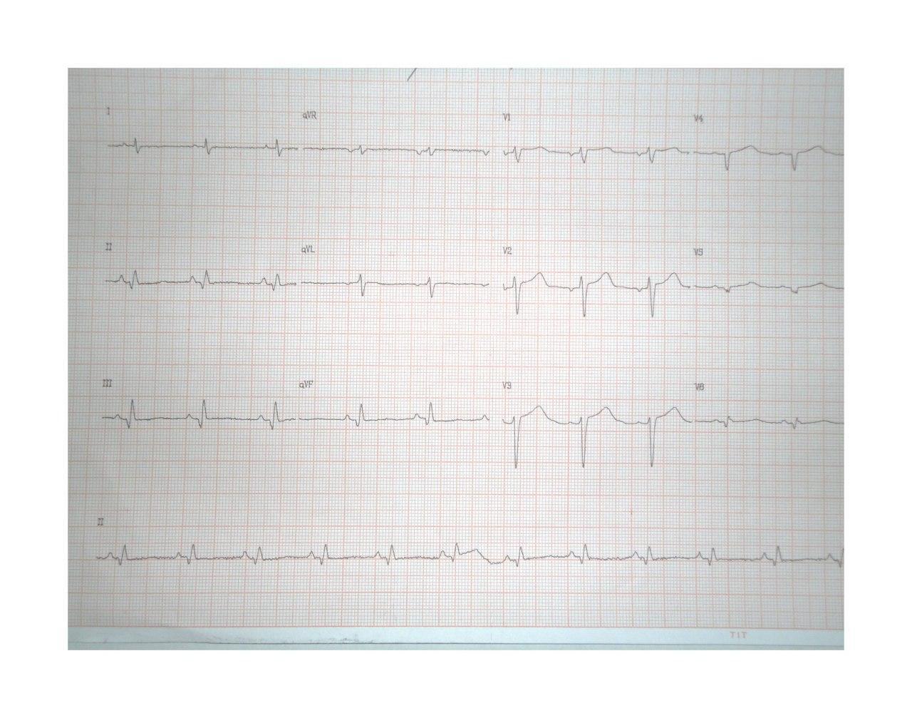 Paciente masculino portador de miocardiopatía crónica chagásica que presentó episodio sincopal por taquicardia de QRS ancho que se controla con CVE observándose en el ECG área de necrosis o fibrosis ínferolateral y presencia de aneurisma con trombo apical