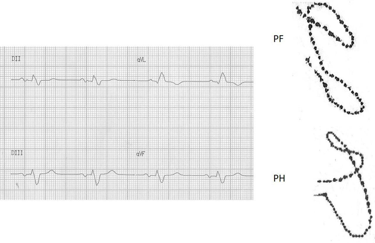 Trazado VCG donde se observa bucle de onda P correspondiente a un BIA-A