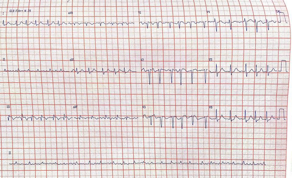 Paciente que hace una semana presentó fiebre, disnea y tos en cuyo ECG se observa patrón S1Q3T3 sugestivo de hipertensión pulmonar en contexto de TEP por trombo en aurícula derecha y foramen oval permeable