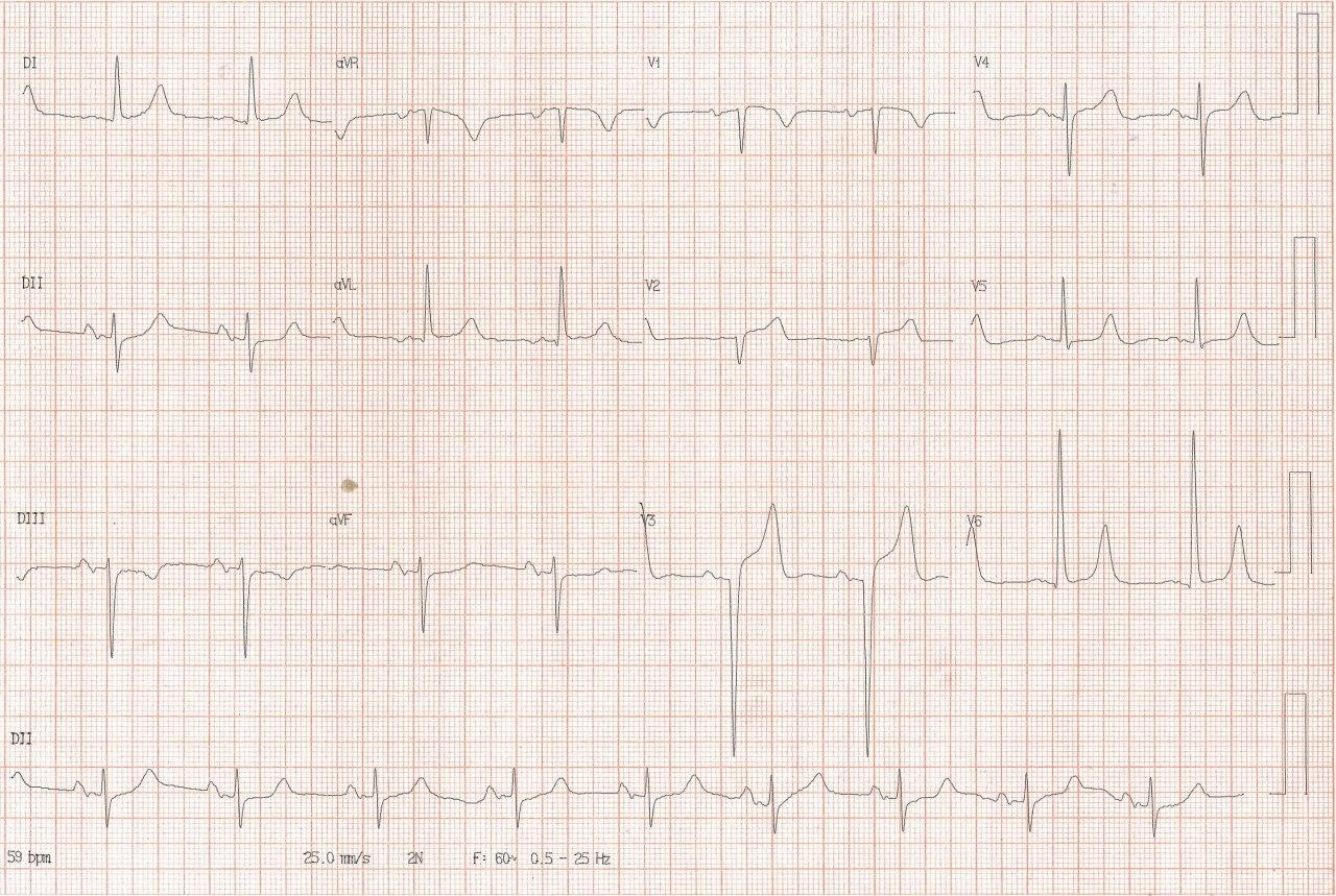 Hombre de 74 años, hipertenso y diabético con angor prolongado cuyo ECG muestra BIA-A y signos de isquemia grado I por compromiso de la DA