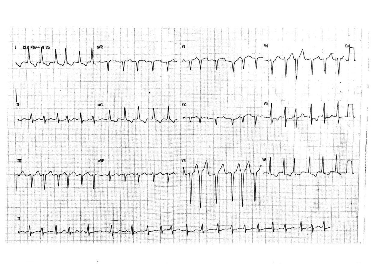 Hombre de 55 años con disnea, angor y palpitaciones por presentar fibrilación auricular de alta frecuencia en el contexto de una miocardiopatía hipertrófica obstructiva