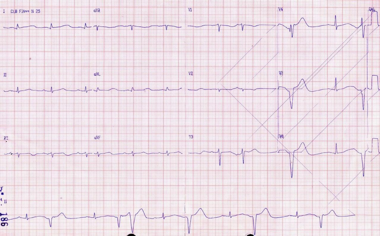 Paciente sometido a trombolisis con rt-PA y que presenta descenso del nivel de conciencia por hemorragia intracerebral que produce prolongación del QT