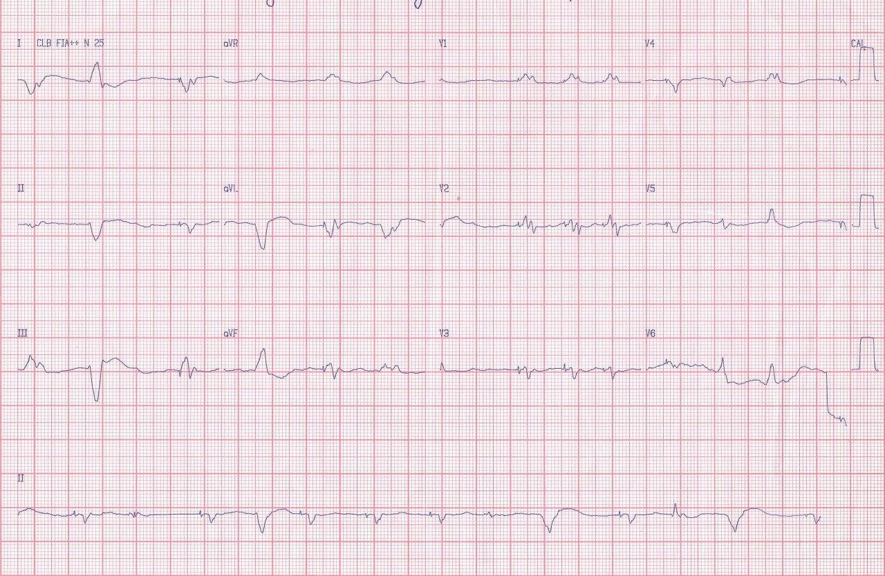 Mujer de 39 años portadora de severa miocardiopatía con implante de CDI-R que es sometida a transplante cardíaco que permite diagnosticar miocardiopatía esponjosa biventricular en el órgano explantado