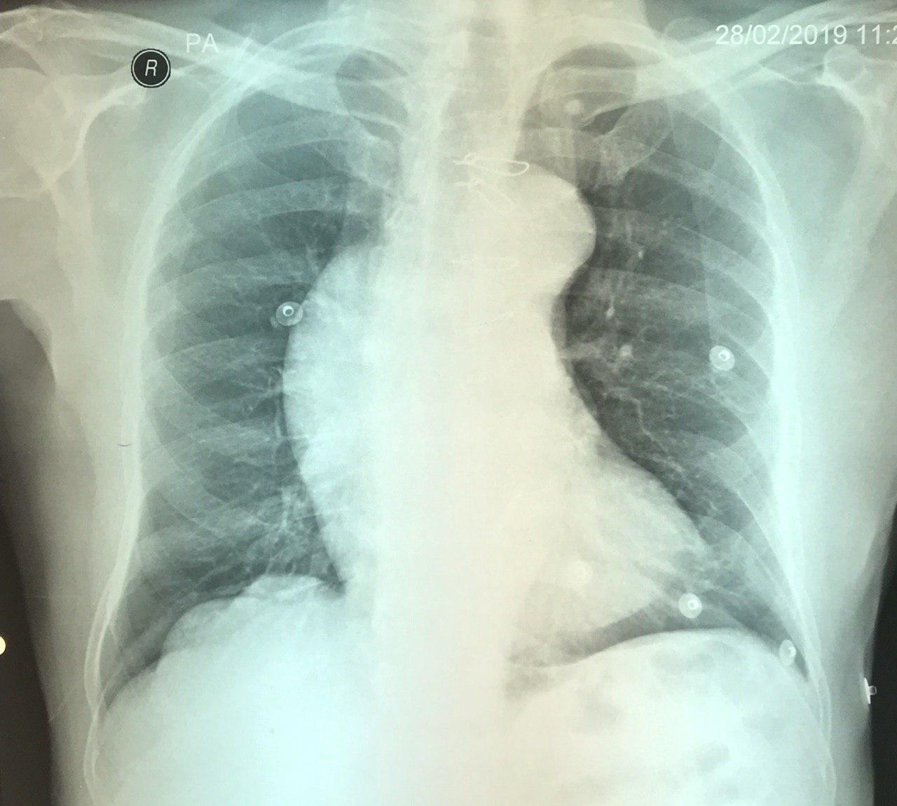 Reemplazo valvular aórtico hace 10 años por bicúspide aórtica con enfermedad valvular que presenta severa dilatación aneurismática y disección aórtica
