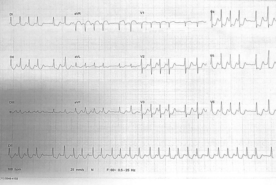 Mujer de 77 años con palpitaciones y síncope que presenta FA y luego aleteo auricular 2:1 con CCG y ventriculograma normales