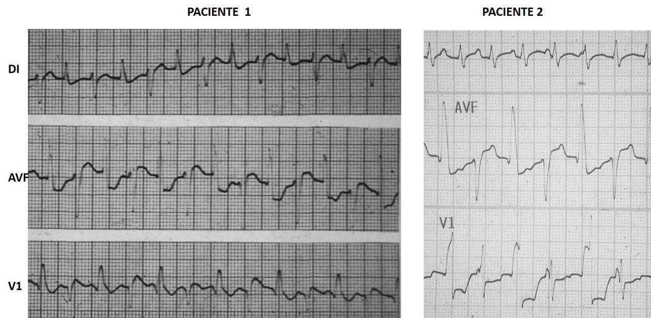 Dos casos de TV bidireccional como expresión de intoxicación digitálica en pacientes con FA