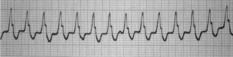 Paciente que presenta taquicardia regular de QRS ancho en quién se realiza ECG intraesofágico que permite confirmar el diagnóstico de Taquicardia Ventricular