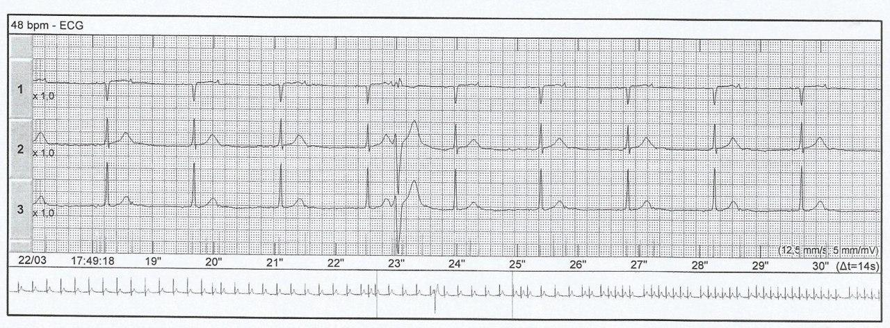 Paciente con palpitaciones en cuyo Holter se detecta taquicardia auricular y extrasístoles auriculares bloquedas dando la apariencia de pseudo bradicardia y que además presenta BIA-A