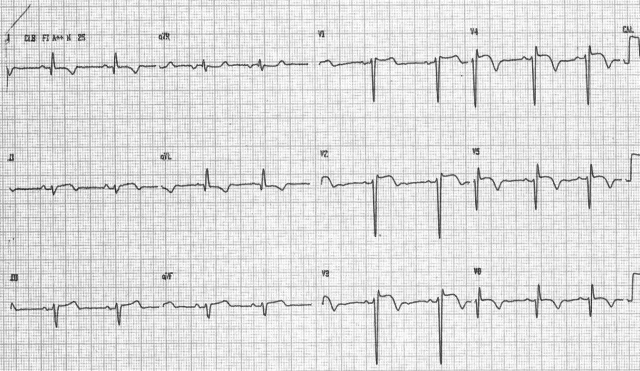 Paciente con historia de infarto previo y episodios sincopales, que presenta aneurisma ventricular con signo de El-Sherif en el ECG