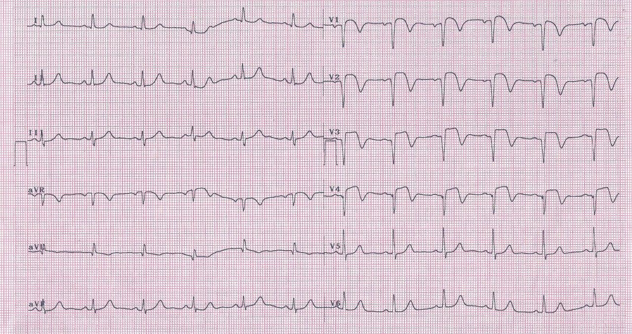 Mujer de 78 años, hipertensa y diabética con angor prolongado y arterias coronarias sin lesiones significativas, por síndrome de takotsubo con normalización de contracción a las 48 horas y persistencia de alteraciones ECG