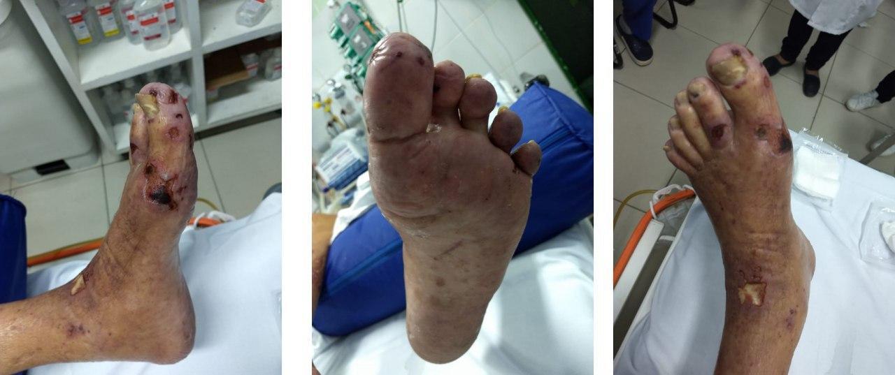 Paciente portador de valvulopatía mitral que cursa endocarditis infecciosa
