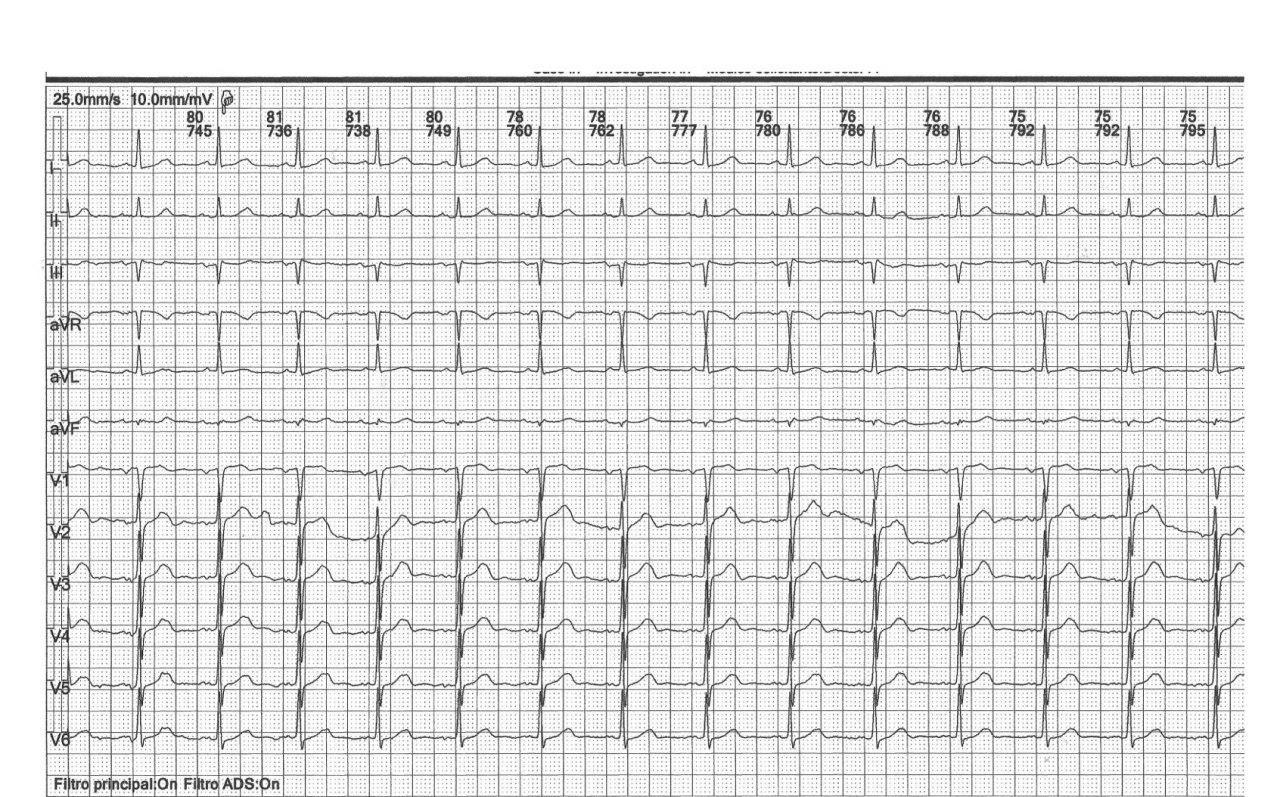 Paciente de 71 años que presenta FA paroxística que revierte a RS con amiodarona EV, detectándose Síndrome de Bayes y presencia de soplo carotídeo izquierdo demostrativo de estenosis