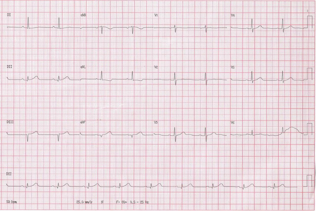 Paciente masculino de 47 años con antecedentes familiares de enfermedad coronaria que presenta episodio de angor prolongado por SCA de cara inferior mostrando depresión del ST en aVL, signo más sensible de isquemia de cara inferior