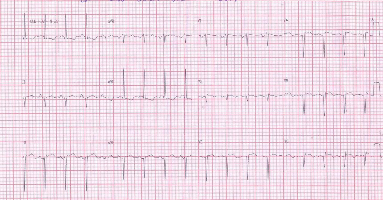 Mujer de 72 años con factores de riesgo e infarto previo que presenta disnea progresiva por la presencia de aneurisma apical y compromiso de DA 100%