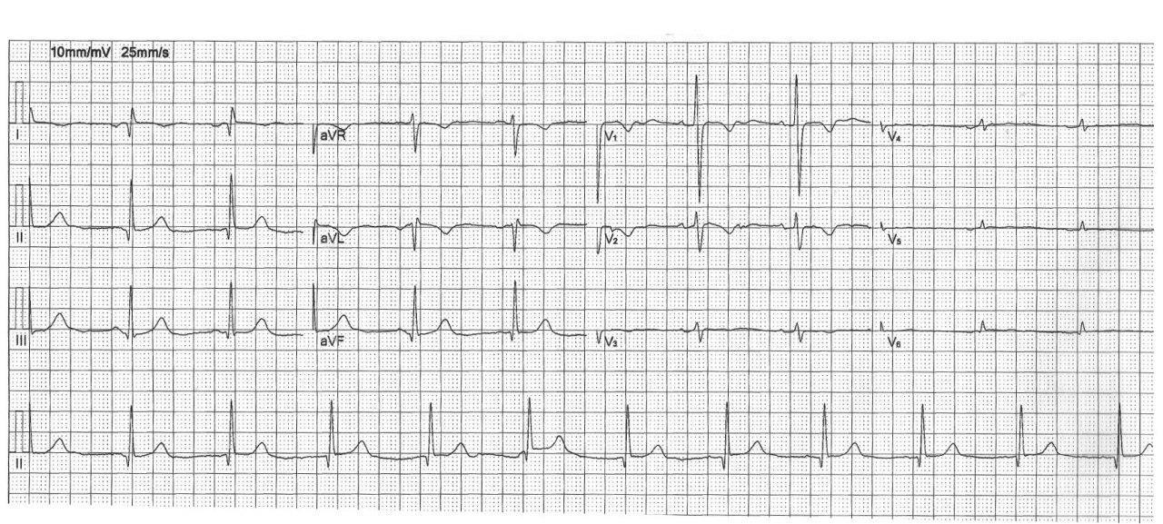 Mujer adulta asintomática portadora de dextrocardia; ECGs con electrodos en posición habitual e invertida respectivamente
